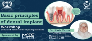 Basic Principles of Dental Implant